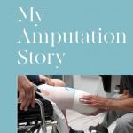 My Amputation Story
